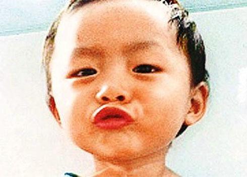 Bé Yeu Yeu, nạn nhân của căn bệnh vô cảm vừa qua đời. Ảnh: Oriental Daily News