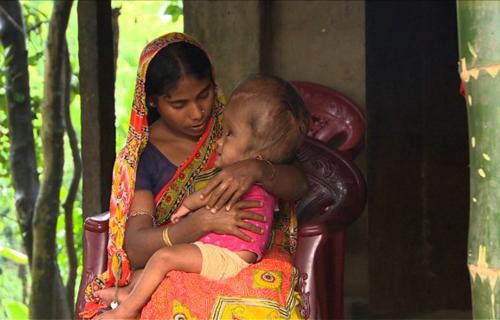 Cô bé Roona 18 tháng tuổi đã có thể cử động phần đầu dễ dàng hơn sau 5 cuộc phẫu thuật chữa trị ung não thủy. Ảnh CNN