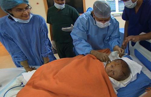 Roona Begum may mắn được tiến hànhphẫu thuật nhờ sự đóng góp của nhiều nhà hảo tâm trên thế giới. Ảnh CNN