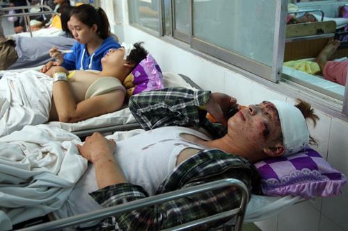 Anh Vũ cùng anh trai đang điều trị tại Bệnh viện Chợ Rẫy. Ảnh: An Nhơn
