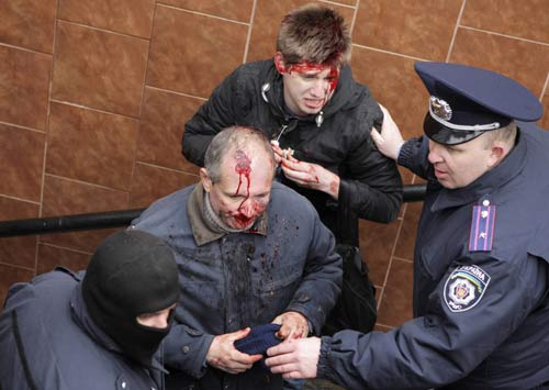 [Caption]Interior Ministrymembers stand near men, who were injured in clashes between pro-Russian and pro-Ukrainian supporters during their rallies, in Kharkiv, April 13, 2014. REUTERS