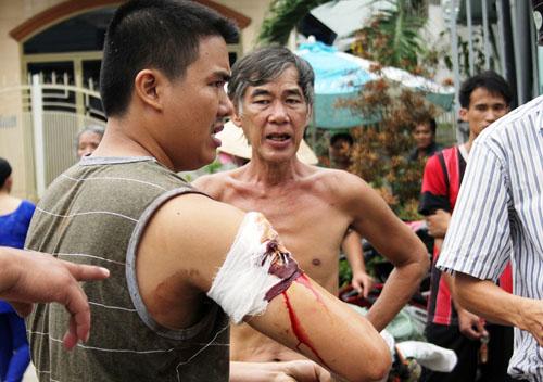 Anh Tùng bị thương ở tay do Nam cầm dao đâm. Ảnh: An Nhơn