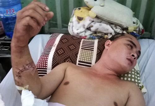 Anh Trọng bị chém ở tay và đầu đang nằm điều trị ở Bệnh viện 175. Ảnh: An Nhơn
