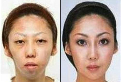 plastic-surgery2-7636-1420530718.jpg
