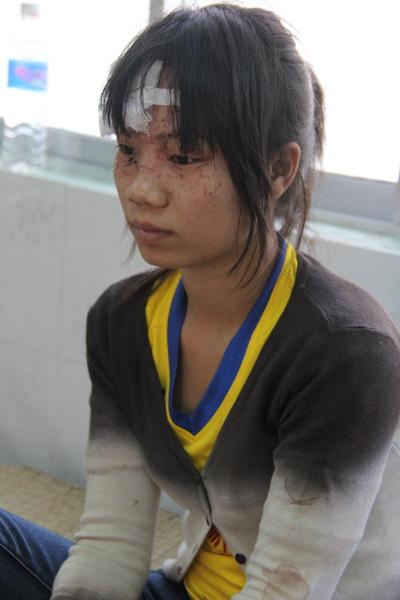 Chị Dương Thị Hồng Nhung bị thương ở vùng mặt đang điều trị tại bệnh viện Hàm Thuận Nam. Ảnh: Hoàng Trường