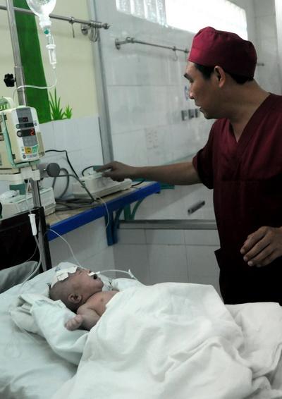 Cháu bé đang được điều trị tích cực tại bệnh viện Nhi đồng Đồng Nai. Ảnh: Hoàng Trường