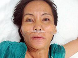 Nghi can Nguyễn Thị Vân đang điều trị tâm thần. Ảnh: C.A