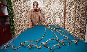 Lý giải về móng tay của người 62 năm không cắt
