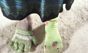 Bé gái đi tất chân bằng găng tay gây xót xa cộng đồng