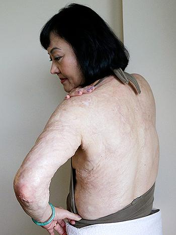 Bà Phúc hy vọng những vết sẹo cùng sự đau đớn sẽ biến mất sau khi điều trị. Ảnh: Nick Út/AP.