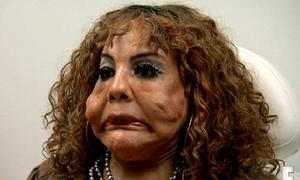 Người chuyển giới biến dạng mặt vì bị bơm xi măng, keo dính