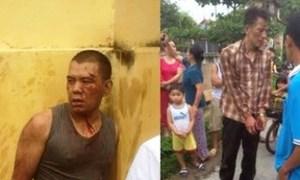 Mang kiếm đi trộm chó, 2 người bị đánh trọng thương