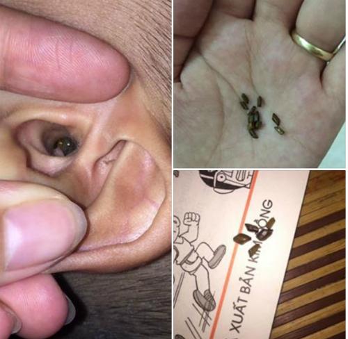 Chơi xúc cát, bé 4 tuổi suýt bị thủng màng nhĩ - choi cat thung mang nhi