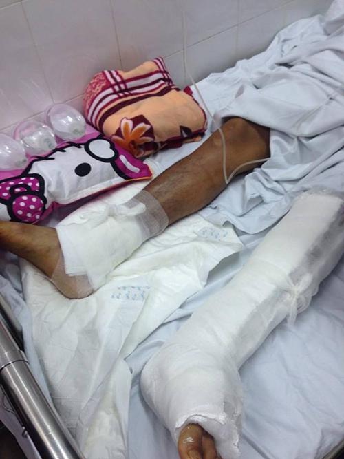 Bác sĩ bệnh viện Việt Đức dọa người nhà bệnh nhân mổ nhầm chân  - Benh vien viet duc