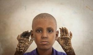 'Người cây' nhỏ tuổi nhất thế giới
