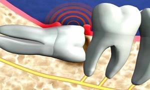 Tại sao chúng ta có răng khôn?