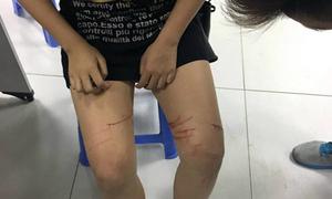 Nữ sinh trình báo bị rạch nhiều nhát dao lam trên đùi