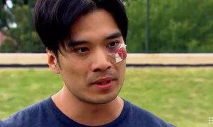 Thiên Nguyễn bị đánh trên đường phố Australia