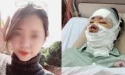 Cô gái Hà Nội bỏng toàn bộ mặt vì nổ 55 quả bóng bay