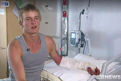 De Paauw may mắn sống sót và không bị mất tay trái sau vụ tấn công. Ảnh: 9 News