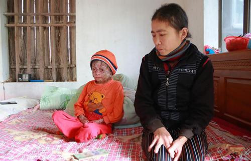 thieu-nien-17-nam-chong-choi-voi-can-benh-y-hoc-khong-the-chua-khoi