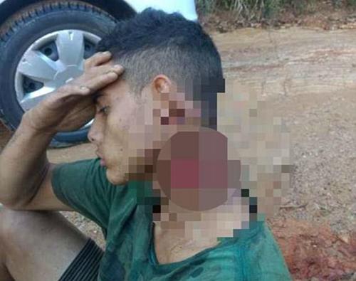 Pablo Patrik de Souza sống sót sau một đêm với chiếc cổ đã bị chém sâu và gần lìa. Ảnh: