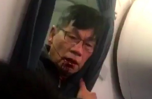 Bác sĩ David Dao, hành khách bị kéo lê trên máy bay của hãng United Airlines. Ảnh: TMZ