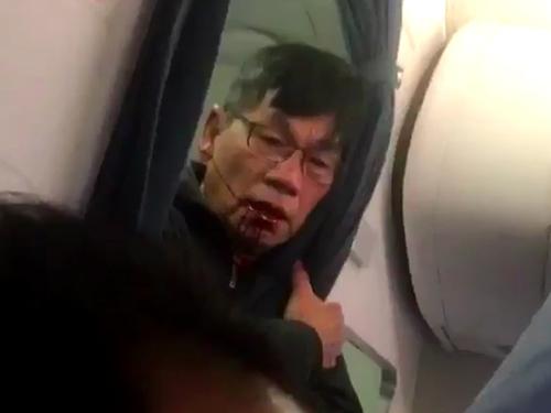 Bác sĩ David Dao trong tình trạng thương tích trên máy bay. Ảnh: Independent
