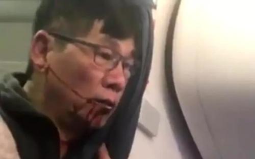 Ông David Dao với miệng đầy máu trên chuyến bay của United Airlines. Ảnh: Telegraph