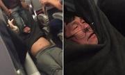 Lý do United Airline cần 4 chỗ và đuổi bác sĩ gốc Việt là rất vô lý