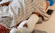 Nam thanh niên bị chém lìa tay trong cuộc truy sát