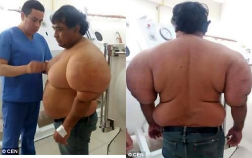 Cơ thể biến dạng của ngư dân Peru sau khi ông ngoi lên mặt nước quá nhanh khi lặn biển. Ảnh: CEN.