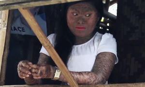 Thiếu nữ Philippines mọc vảy cá khắp cơ thể