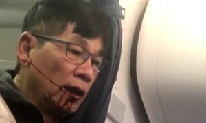 Nhân viên an ninh Mỹ kéo bác sĩ gốc Việt khỏi máy bay bị đuổi việc