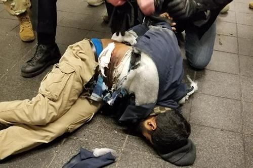 Nghi phạm bị bỏng tay và bụng sau vụ nổ bom. Ảnh:Twitter