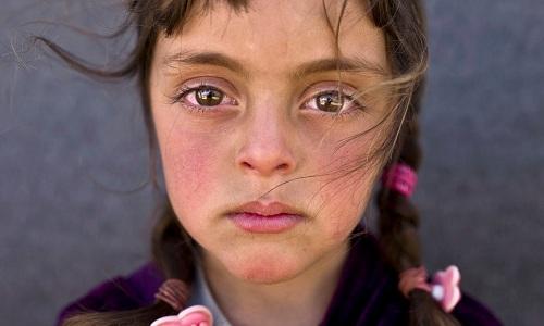 Một em bé 5 tuổi người Syria. Ảnh: AP.