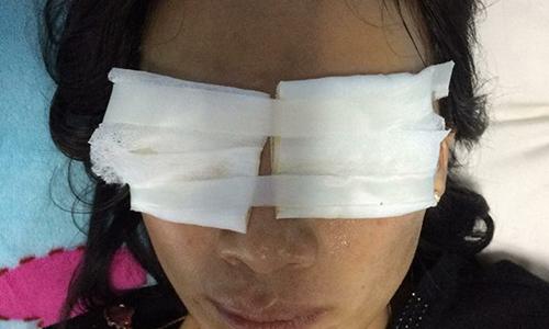 Con dâu bỏng hai mắt sau cú tạt axit của mẹ chồng