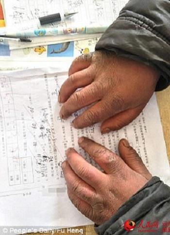 Bàn tay nứt nẻ vì lạnh của cậu bé Trung Quốc. Ảnh: Nhân dân Nhật báo.