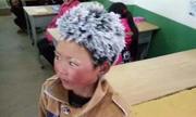 'Cậu bé tóc băng' và cuộc chiến chống đói nghèo ở Trung Quốc