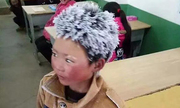 Cậu bé tóc băng Trung Quốc chỉ được nhận hỗ trợ 1.250 USD