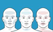 Cách phân biệt các kiểu đau đầu dựa vào triệu chứng