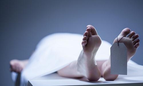 Cơ thể người có nhiều biến đổi sau khi chết. Ảnh minh họa: List.