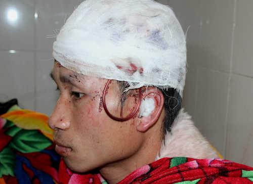 Anh Hân đang điều trị tại cơ sở Y tế Quế Phong. Ảnh: Nguyễn Cường.