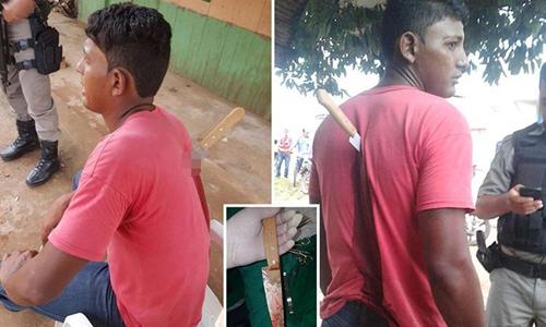 Nạn nhân và con dao đang cắm trên lưng sau khi bị tấn công. Ảnh: Focus on News.