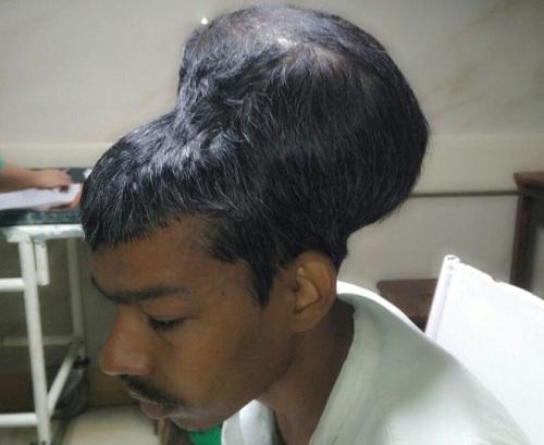 Phẫu thuật loại bỏ u não lớn nhất thế giới ở Ấn Độ
