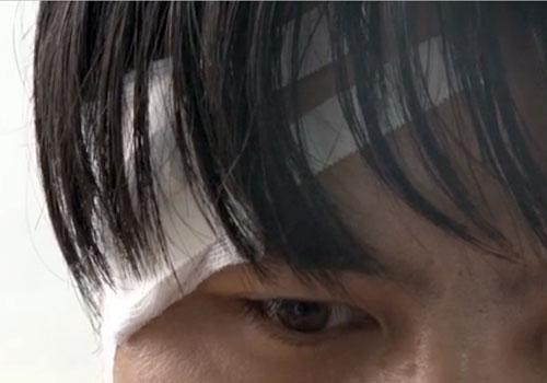 Một bác sĩ bị hành hung rách đầu. Ảnh: Báo Yên Bái