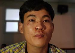 Nạn nhân Xuân tại bệnh viện kể lại sự việc. Ảnh: Sơn Hoà.