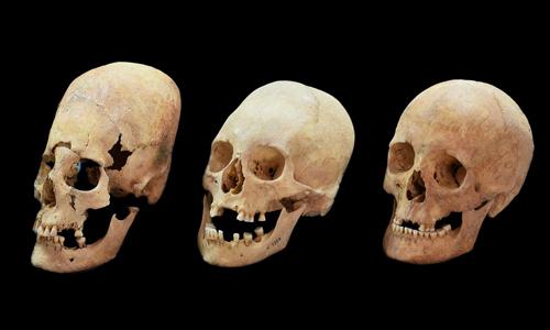 Hộp sọ bị kéo dài nhiều (trái) và ít (giữa) so với hộp sọ thường (phải) được tìm thấy ở Đức. Ảnh: Newsweek.