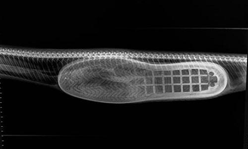 Ảnh chụp X-quang hé lộ chiếc giày nằm trong bụng trăn. Ảnh: Facebook.