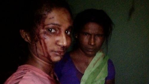 Meshram mặt đầy máu khi vào viện cấp cứu vì đánh nhau với hổ. Ảnh: BBC.